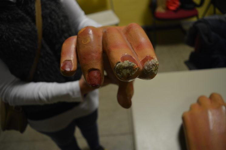 Desperfectes mà de la geganta.